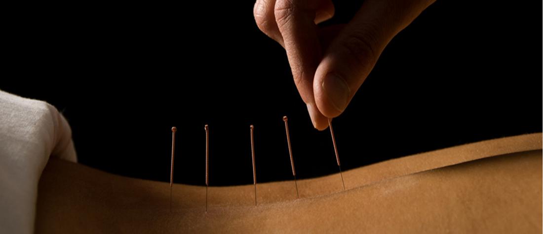 Master akupunktur gør op med smerterne!